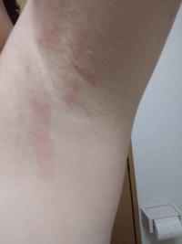 医療脱毛で脇を体験してみました。 右脇だけ写真のように赤くただれてしまいました。 ヒリヒリとします。  左脇は何も起こっていません。   この場合、どのように対処すればよろしいでしょうか?  また、このようなただれはよくあることなのでしょうか?   知ってる方いらっしゃいましたら、アドバイス頂戴したいです。