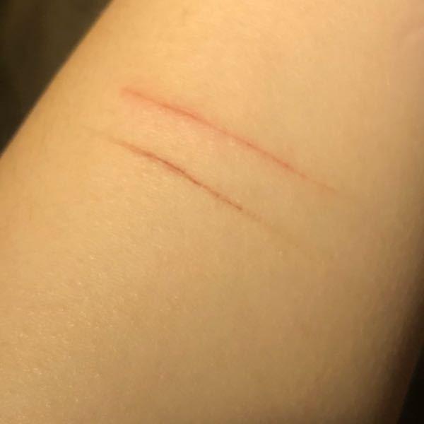 二箇所だけですが… これってリスカになりますか? 傷はとても浅いです イライラしてしまった時にカッターで自分でやりました