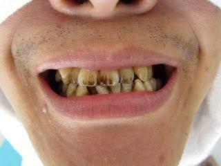 元喫煙者です(^^) 10年近くタールのキツいタバコを吸ってきましたが写真のような黄ばみは全くありません。非喫煙者の方と同じような感じです。 そこで思ったのですが、この写真のように歯が黄ばむ方というのは歯磨きをしていない、もしくは生まれつき歯が着色しやすかったのではないでしょうか?