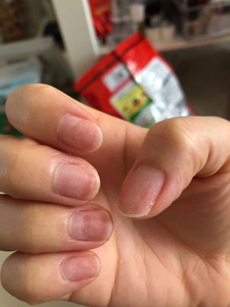 これはグリーンネイルですか? それとも傷んでいるだけでしょうか?? この上にまたジェルネイルしても、 大丈夫でしょうか??