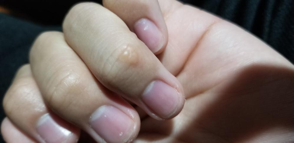 高校1年の男です。 左手の薬指に画像のようなできもの(?)ができてしまったのですがこれはなんなんでしょうか? 痛みや痒みは特になく、触っても何も感じません。できて2週間ほど経つのですが治る気配が...