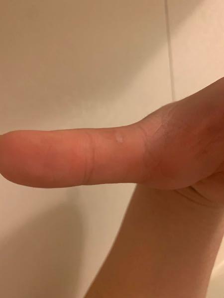 高校で弓道部に所属しています。 練習をしていくうちに押手の親指の部分の皮が剥けたりツルツルになったりして少し痛みます。 先生に聞いたところ手が持たなくなるから何か薬を塗るといいよと言われたんですけど。 なんの薬を塗ればいいですかね?