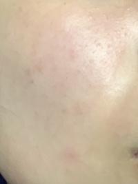 元々アトピーもちでお肌に気を使っているせいか綺麗だったのですが最近頬に赤くブツブツと0.05mmくらいの出来物が沢山できています 美容に詳しい方対処法を教えてください!!!