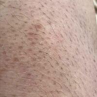 !!!!!!閲覧注意 !!!!!! かなり汚いです!!!!!  17歳女の膝です。  昔から腕や脚の毛が濃く、幼い頃男子に毛が生えていることをバカにされてから毎日毎日剃ったり抜いたりしてました。 どんどん黒ずんできてしまってこんなに汚くなってしまいました。  今はスカートなどはくことがないので脚の毛を剃るのは疎かにしてますが、、、   これは脱毛すれば治るのでしょうか? 今考えてるのは医療脱...