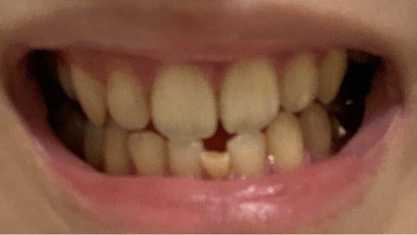 これって顎変形症ですか? 矯正だけでは治らないですかね?