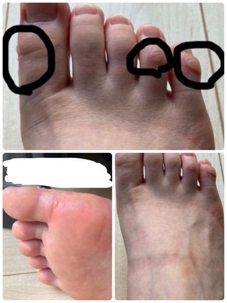 SPIRALGIRLのクリアヒールサンダルを履いていたら水脹れが出来てしまいました ( • ˍ • )場所は、親指の側面と足裏の付け根部分、薬指と小指の関節部分です。 靴を脱いだ時にサンダルの跡...