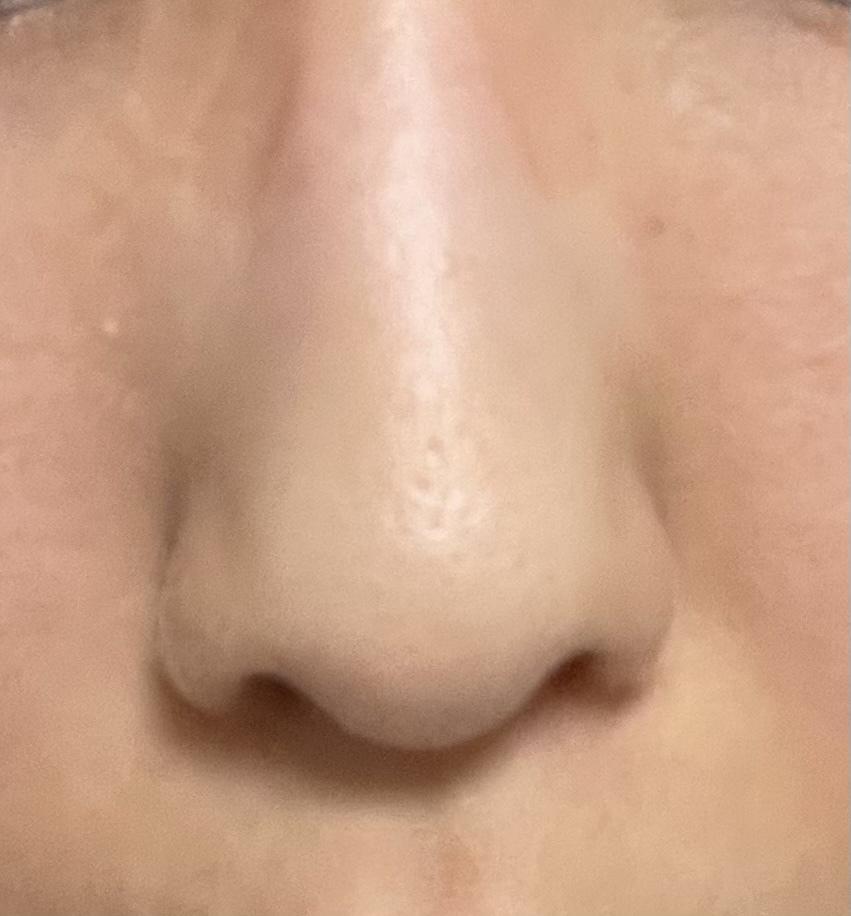鼻が曲がってるし、左右非対称だし、穴が三角だし、、 整形するならどんなメニューが良いですか?