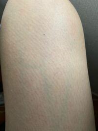 写真の通り脚が汚いです。 ムダ毛の処理はカミソリで剃って、2週間に1回はケノンを使っています。毎日お風呂後ハトムギ化粧水も塗っています。 それでも何故か汚く、線?筋?のようなものが特に気になります。これは何でしょうか?治りませんか?