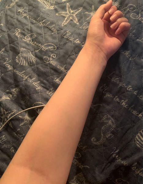 手首と腕が太くて小学生の頃からコンプレックスでした。 ダイエットで10キロ痩せても細くならなかったです。 細くするにはどういった運動をすればいいでしょうか??