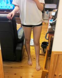 脚太いですか、?(特に太もも) 正直にお願いしますm(__)m あと膝が男って言われたんですけど、膝の黒ずみ取る方法あれば教えてほしいです、、