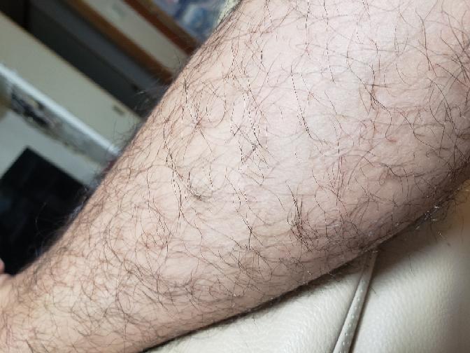 スネ毛に悩んでます。脱毛したいんですけど、除毛クリームだとただ毛を剃ってるようなもんなのであとから生えるのが悩みです。どうしたらいいっすかね?汚いですけど、今はこんな感じです…