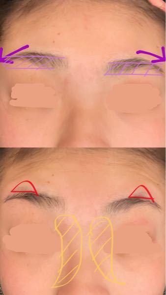 《眉毛》眉毛の整え方について 最近平行眉が流行っていますが、アイブロウで書いても整えても元の形がキツすぎて綺麗な眉毛になりません。この写真を元にアドバイスをください! ①紫(矢印と形) 元々釣り眉でとても太くてこれでも整えています。 紫で書いているような形にしたいです。紫のところ以外(上にはみ出ているところ)を無くして下の部分に生えて欲しいです。しかし下の部分は斑に生えてきて綺麗になりません。眉頭のところの高さから上に生えないで欲しいです。 アイブロウで書いても上のところがあるため極太になってしまうためメイクではカバーしきれません。 ②赤(三角) 眉丘筋が目立って仕方がありません。目を見開かなくてもボコっと目立ちます。目を見開いたら酷いです。 そして整えても抜いても剃っても、すぐに生えてきて青く見えチクチク見えます。目立たなくする方法、生えなくする方法教えてください。 ③黄色 ここの範囲は眉毛じゃない所なのに整えないと眉毛が生えてきます。剃るとブツブツ目立つくらい濃いので抜いていますが普通こんな所まで眉毛生えませんよね?特に黄色のところの上の方は濃い上埋没毛が凄いです。 伝わりずらくてすみません。 どなたかご回答よろしくお願いします ♂️