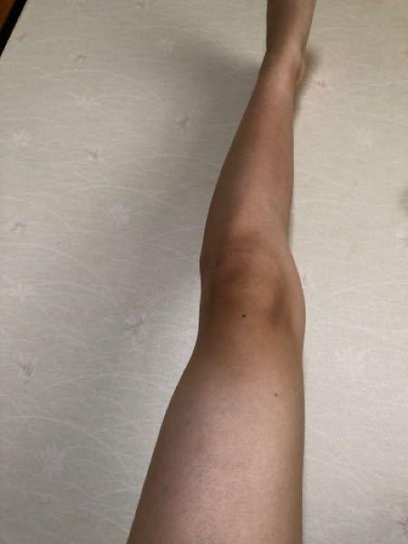 O脚って治ったら身長伸びたり足長く見えたりしますか?