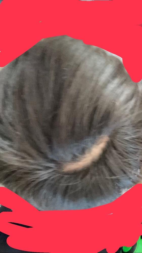 髪の抜きすぎではげました。中1です。まじでやばいです。これって治りますか!?ちなみに枝毛が気になってぬいちゃってました。