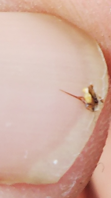 ミツバチに刺されました。 傷口に針?のようなものが刺さっていなので、抜いたのですが、病院に行った方がいいのでしょうか?