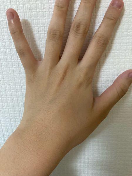 写真含みます(手の甲.指) 結構毛穴が目立って気になってしょうがないですどうしたらいいでしょうか また指や手の甲は剃っても上手くできてないのか少し剃り残しがあります 小学生の時からの悩みなので1回でも綺麗な手になってみたいです…解決方法何かありましたら教えてください