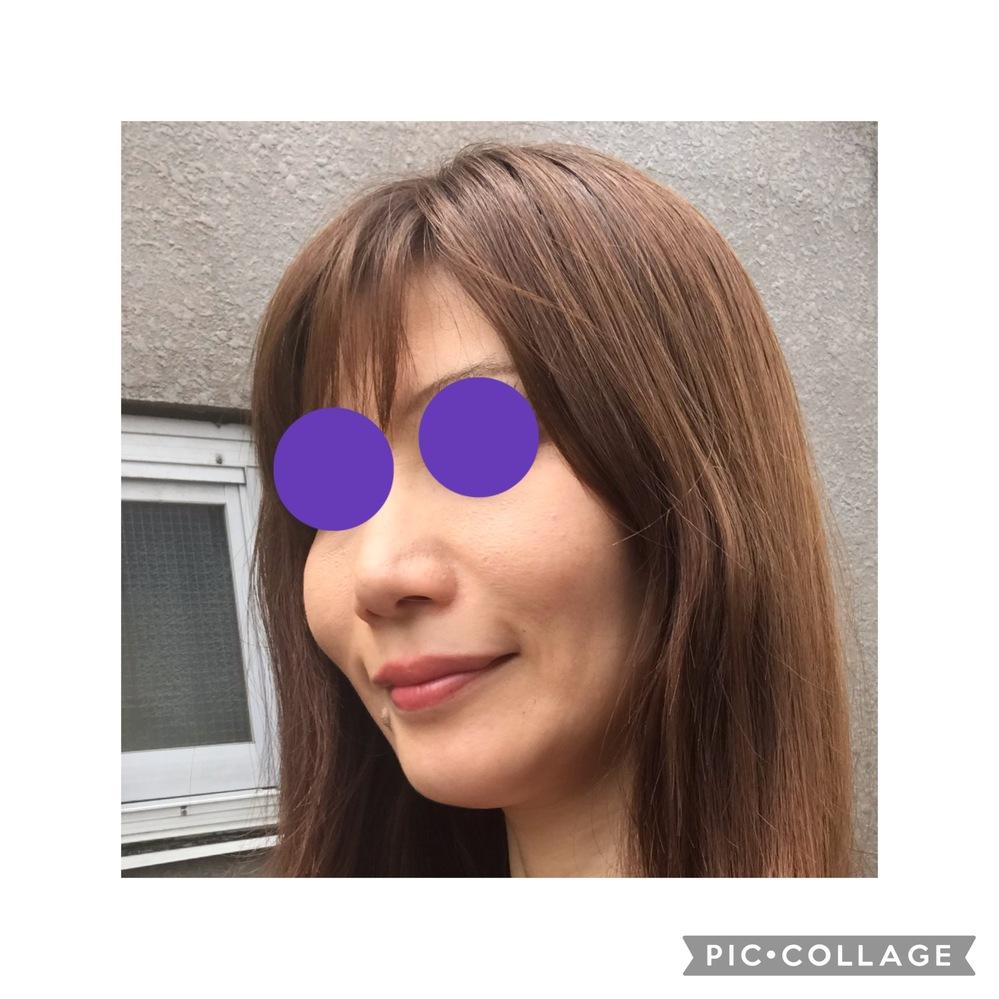 美容整形若返り治療 美容皮膚アンチエイジングについて。私はあとどこを治療したら若返るでしょうか? (写真があります)客観的な意見を教えていただきますか? 私はこれまでに、ほうれい線ヒアルロン酸3回、ソノクイーン1回、水光注射PRP3回、水光注射美白1回、PRP治療ほうれい線と眉間の治療をしました。しかし、お金をたくさん払った割には若返った気がしなくて。。。元々、骨格や顔の作りが童顔じゃなくて大人顔(老け顔)です。20代後半ぐらいに見られたいです(>_<)