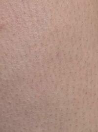 太ももなのですが埋没毛ですか? カミソリで剃っていてすごくチクチクして痛いです。 毎日ボディクリームで保湿しています。  一つの毛穴から2本生えているところもあります。