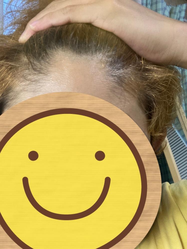 僕の頭は写真のように額の真ん中だけM字型に髪が生えていません。このような髪型は富士額に入るのでしょうか? もし違うければ何という髪型なのか教えてほしいですm(_ _)m