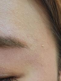 ファンデーションがうろこ?みたいになる件 時間が経つとファンデーションがうろこ?みたいになり、汚くなります。 触ると伸びてポロポロします。 部分的ではなく、おでこも頬も顎も顔全体です。 なにが原因なんでしょうか?  朝のスキンケアからのベースメイクは 洗顔無し →ハトムギ化粧水をコットンにつけてふき取る感じで整える →シカクリームを顔全体に塗る →セザンヌの皮脂テカリ防止下地(ライトブルー)...