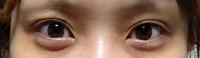 私の目は目頭切開をやっても意味ない(変わらない)でしょうか…? 1度も整形、プチ整形などした事はありません。 目は二重なんですが加齢なのか三重、四重です。 目頭は人より比較的尖ってるほうだとは思いますが、目が離れ気味で目の距離を近付けたいです。 目頭切開は調べたら被っている蒙古襞を切って白目を広く見せる?とのことで、目頭自体を切ってる訳ではないってことなんですかね…? 私も蒙古襞ありますが、...