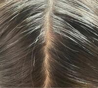 つむじの少し後ろの一部分だけフケが出てきます。それ以外の横の髪やこめかみなどにはフケが出てません。原因は乾燥なのでしょうか。 (触るとすぐポロポロ取れます) またフケが出ている部分に赤い湿疹みたいなのがあるのですが、それも関係あるのでしょうか。