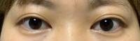 一年半前に湘南美容クリニックさまでフォーエバー二重術をしてもらいました。 最近もしかしてこれはハム目なのかも…と思ってしまいとても気になります。 二重の瞼が若干目に乗っている状態です。 一重の時よりはマシなのですがぷくっとなっているのがとても気になります。