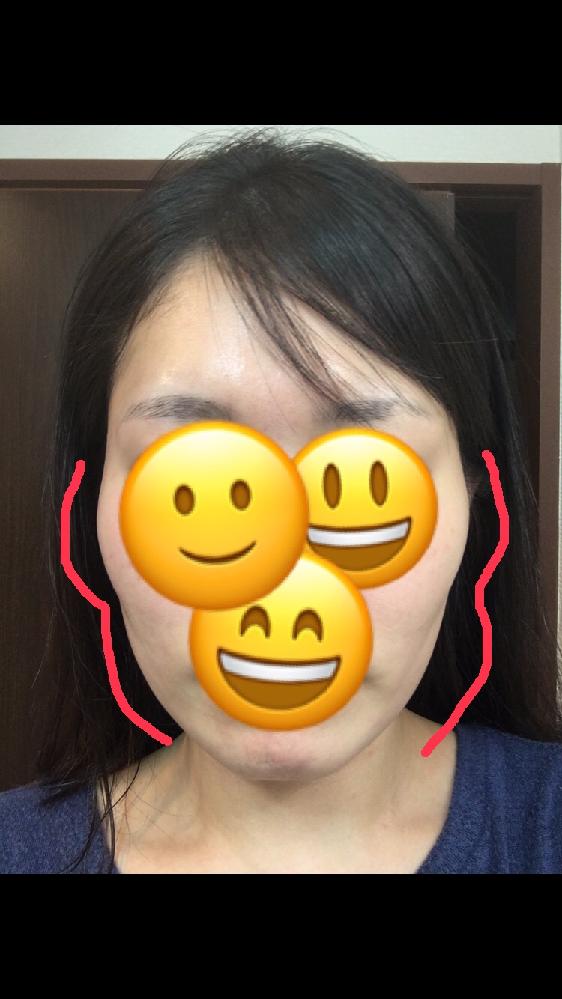 顔の輪郭に長年悩んでいます。 28歳女です。 頬骨が出ていてエラが張っていると自覚しているのですが、そのせいで写真赤線のような輪郭になるのでしょうか?赤線は大袈裟に引いていますが。頬骨からあごにかけて斜めに線のような影が入っているように見えます。 その場合、どのような改善方法がありますか?可能なら自分で行うマッサージ方法などあれば教えて欲しいです。 ブサイクなどの誹謗中傷は傷つくので心の中だけに留めておいて欲しいです。