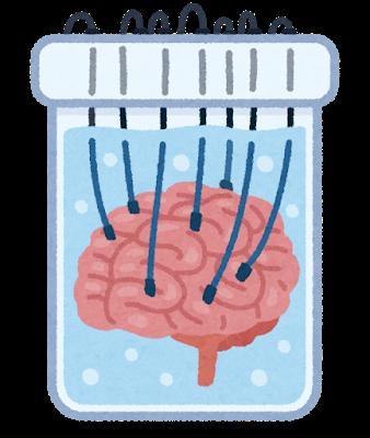 脳みそを水槽に保管して、管のような物を繋いで脳と会話をしている絵を見たのですが、本当に可能なのでしょうか。 写真のような状態のことです。