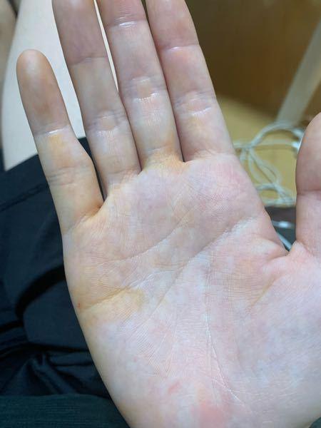 これは黄疸なのでしょうか? 初めまして。 質問させていただきます。 先週の木曜日に右掌が、気づいたら黄疸が現れました。 その三日後には綺麗に黄疸がなくなりました。 右掌以外の場所には黄疸が現れ...