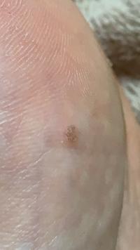 足の裏なのですがウイルス性のイボなのでしょうか?