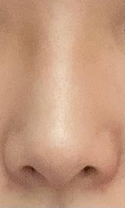 この鼻の形って豚鼻とだんご鼻とニンニク鼻ならどれでしょうか。