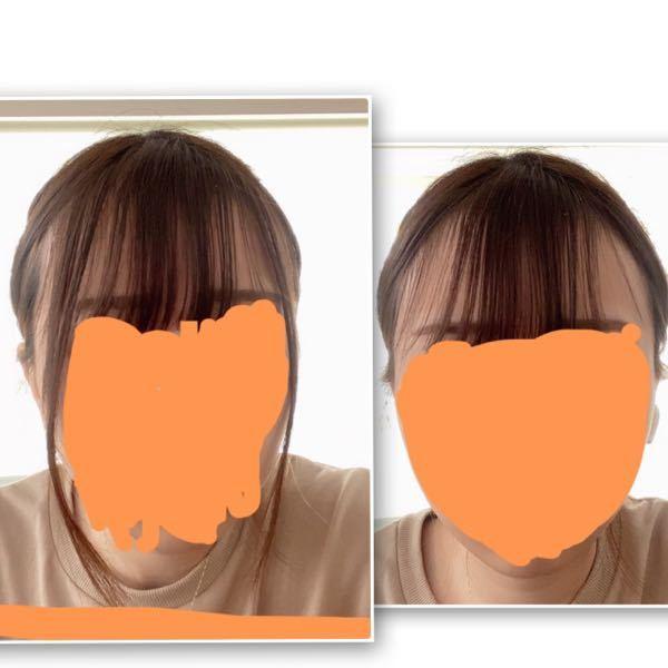 サイドバンク?というのを作りたいのですが、どうしたらいいでしょうか。。 サイドに中途半端な長い毛があり(多分伸びた前髪です) これを横に出すと細い触覚みたいになり気持ち悪いです。 ですが中途半端なので1つ結びしても垂れてきます。。 そして前髪の左右横も毛がないと禿げて見えるので 重くないサイドバンク?というものを作りたいのですが失敗しそうで怖いです.. 前髪がパッツンなので、これでよこに頬くらいの長さで縦にハサミいれても 前髪との差でカクンッてなりますかね? (写真片方サイドの取る量間違えて長さ違います汗)