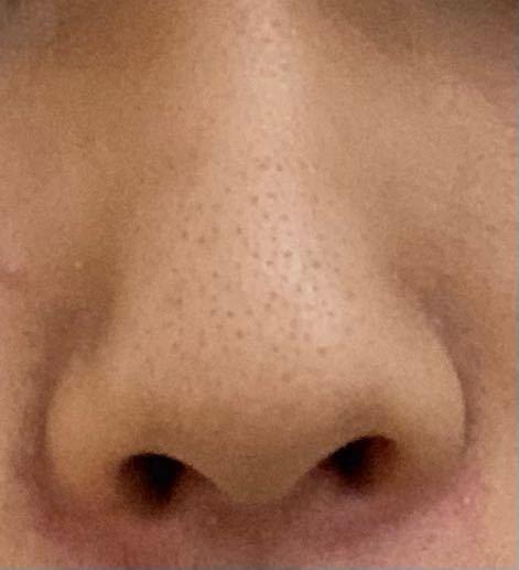 この鼻はだんご鼻ですか?