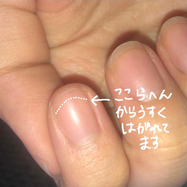 急につめの伸びてる部分が綺麗に取れちゃったのですが、何が原因かわかりますか? 爪が割れていたわけでもないし、どこかにぶつけたわけでもないし、本当に急に爪がとれました。 2枚目の画像にある通り、爪...