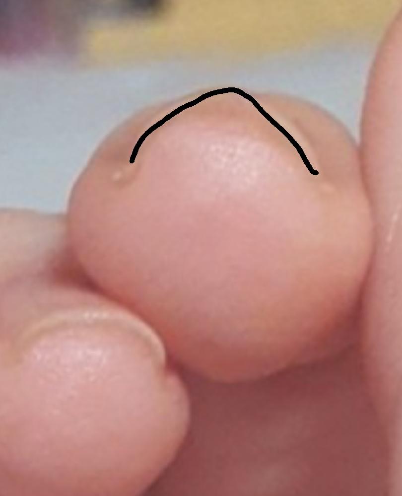 爪の曲がり具合?が急でどういう爪の形に整えたらいいのか分かりません。 曲がり具合は治りますか? もし治らないのであればどんな形にしたらいいのか教えてください。よろしくお願いします。