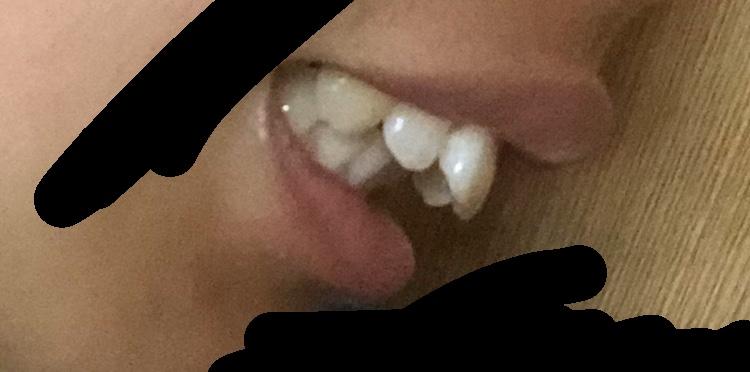 これって出っ歯ですか? (先程投稿した画像だと画質が悪かったので)