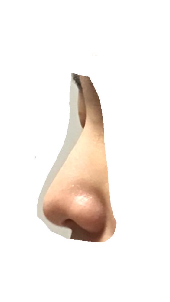 この鼻どう思いますか。肌が汚いのは承知してるので形についてお願いします。