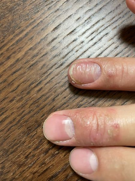 半年前くらいから指が荒れて、 薬指の爪がこの様に波打つようにボコボコになりました。原因はなんなのでしょうか?