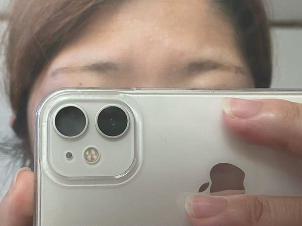 このハゲたような眉毛で、眉毛サロンにいっても 大丈夫ですか?