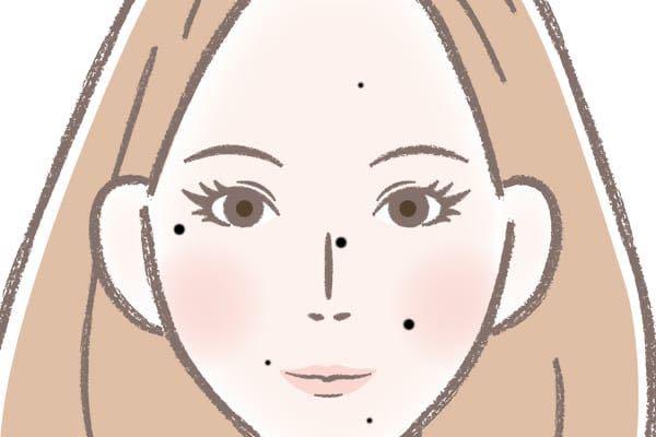 この写真の鼻筋のちょい横にあるみたいなほくろって除去できるならした方がいいと思います? 私的には気に入ってるには気に入ってるけど、でも無い方が顔の印象が良いと思っています。