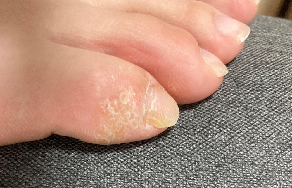 過去に病院で水虫だと診断され、ルリコン軟膏1%を塗り続けています。治るまで長期かかると言われました。同じような症状の方、どれ位で治ったか教えてもらえますか? 皮が固く鱗上にボロボロになっています...