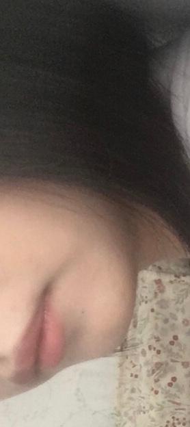 口角から輪郭に向かってある黒ずみってなんですか??、 写真を撮ったときにすごく目立っていてコンプレックスです。 これって皆さんにあるものですか? どうやったら消せるのでしょうか?