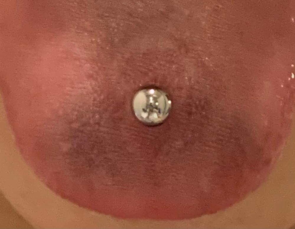 写真キモくてすみません 舌ピが内出血してきました〜 これってほっといて大丈夫なやつですよね? 写真よりもうちょっと色濃いです!
