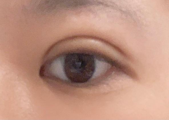 二重埋没法を1週間前に受けました。 瞼の脂肪取りをしたり、点どめによる埋没法ではなく線どめによる埋没法を受けたことで、通常よりダウンタイムが長くなってしまうかと懸念していたのですが、やはり1週間経っても腫れが全然引きません。 また、脂肪吸引をしたことで被さる部分が減ってしまい、シミュレーションしたときの二重幅よりだいぶ広くなってしまっている気がします。これも腫れがひいていないだけかもしれないので分かりませんが、正直鏡で自分の顔を見るたびに不安ばかりです。 周りの友達も、気を遣って可愛いと言ってくれる友達もいれば、そのまま完成だったら嫌だよねと正直に言ってくれる人もいて、どちらにしてもとても複雑な思いです。 学生で、1ヶ月後に迫る成人式の前撮りのために高いお金を払っただけに、このまま腫れぼったい目のまま完成してしまったらどうしようと不安しかありません。 線どめによる埋没法と脂肪取りを施術した後の経過として、写真のような今の目の状態は普通でしょうか?