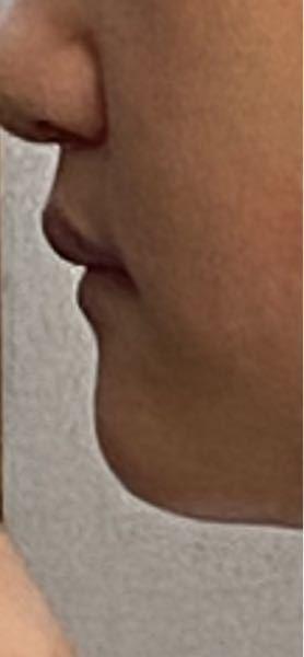 10代女。 4人兄弟で、みんな上唇が前に出てるのですがこれは骨と唇の厚さどちらの問題だと思いますか?