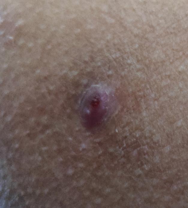この皮膚病?が気になります。汚くて申し訳ないです。3,4年前ぐらいからずっと臀部(座る時に当たる骨の外側)にこんな出来物?が出来ているのですが、ニキビや粉瘤とも、場所的に痔とも言えないですし、な...