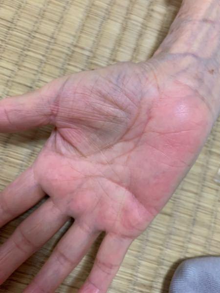 おばの手のひらにかたい腫瘍?かできものが両手に2、3個あるのですがこれはガングリオンでしょうか?小指の付け根あたりや手のひらにあり、たまに痛いらしいです。 できもの?の部分に少し熱を持っているら...