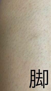 医療脱毛をしたいのですが、何回やれば自己処理が要らないくらいツルツルになりますか? 剃ってから2日後で写真くらいの量の毛が生えて来ます。  また、おすすめのクリニックがあれば教えて欲しいです。