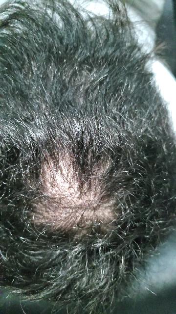 禿げについて質問です。 今僕は、中三で禿げで悩んでいます。 これまでは髪を伸ばして気にしないようにしてたんですけど髪を切ったら禿げが気になって仕方がありません。 これは、何をしたら毛量を増やせますか? 行くとしたら皮膚科ですか?